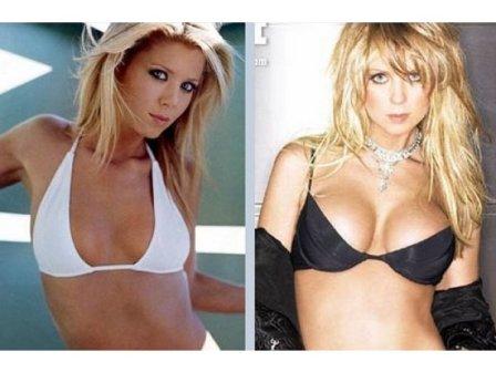 Fotos de implante de mama columbia