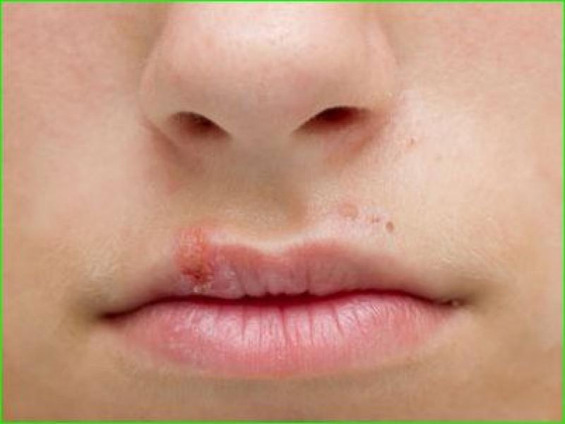 Herpes Labial (Foto: Reprodução Google)